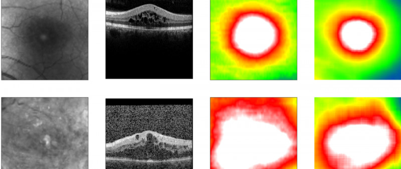 Algorithm predicts retinal thickness. From left to right: Fundus image, OCT imag