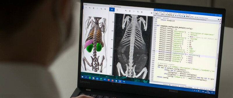 Thanks to artificial intelligence, the AIMOS software is able to recognize bones